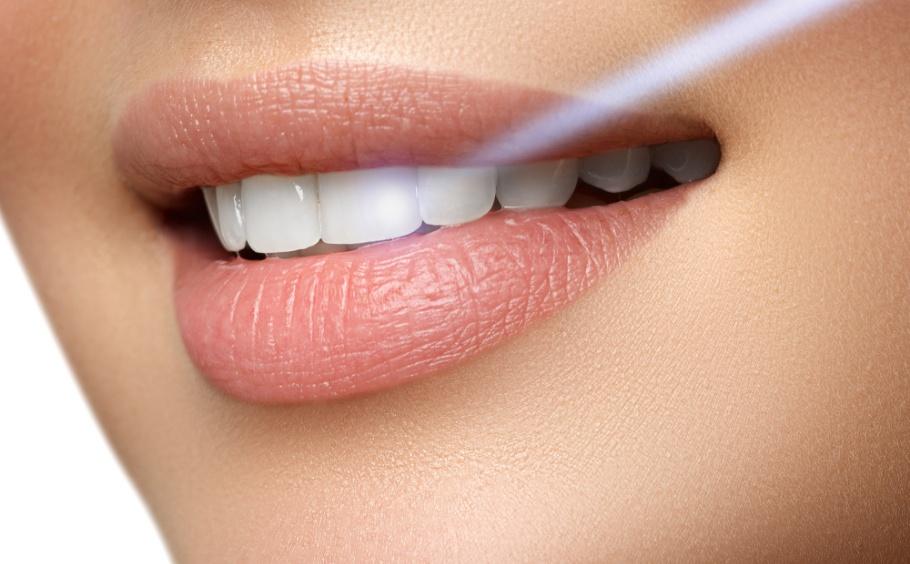 Laser-Dental-Procedures